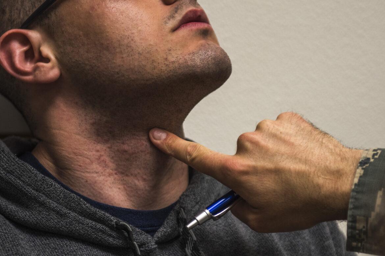 skægpest-undgå
